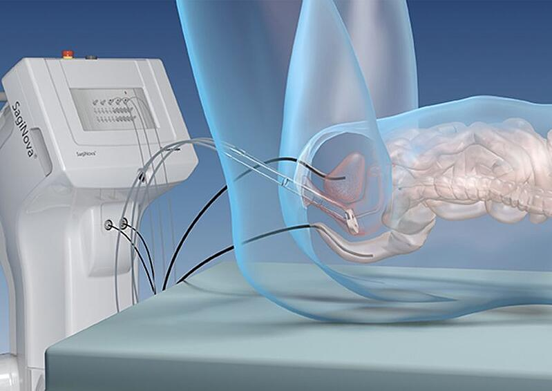 More refined brachytherapy further improves cervical cancer treatment