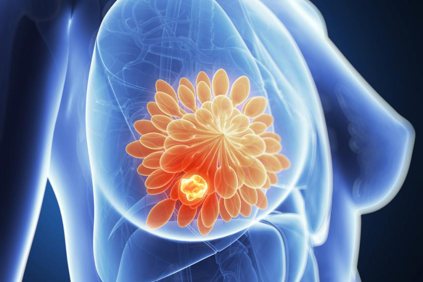 Cryotherapy was shown to be effective against low-risk breast cancer